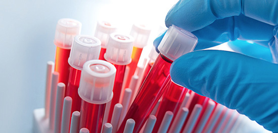 badania-laboratoryjne